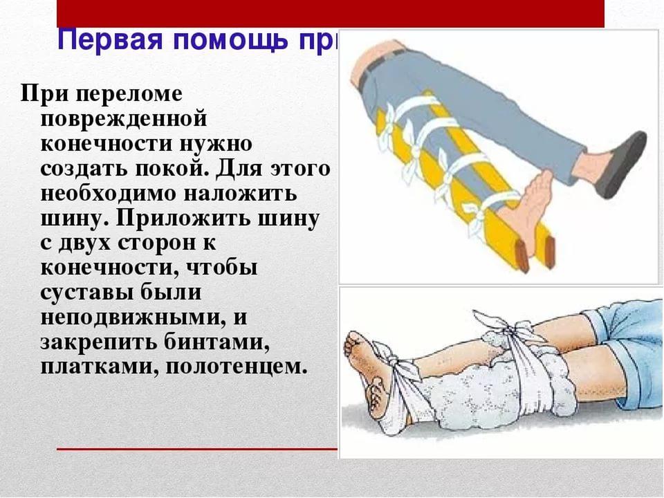 помощь при переломе ноги
