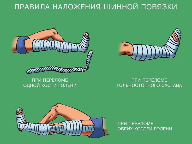 правила наложения шины при переломе голени