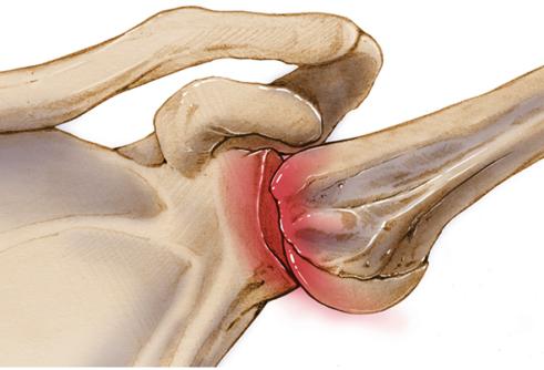 Привычный вывих плечевого сустава лечение без операции лечение суставов в таганроге