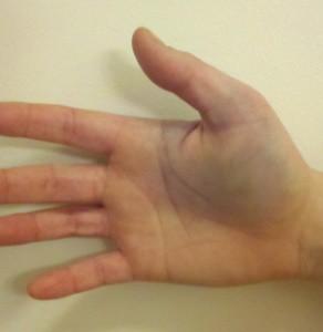 признаки перелома пальца руки