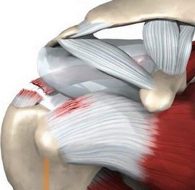 Растяжение связок плечевого сустава: симптомы, лечение