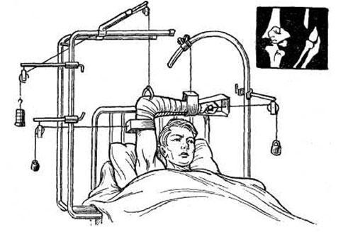 скелетное вытяжение плеча