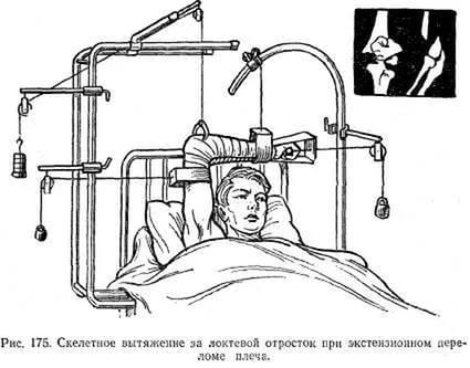 скелетное вытяжение при переломе лопатки и плеча
