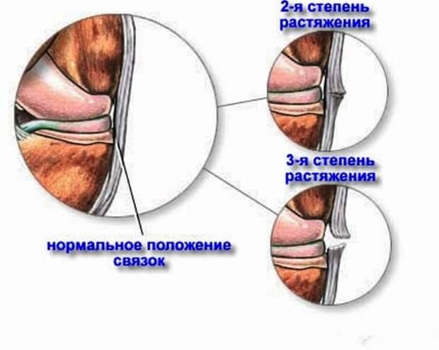 степени растяженя связок голеностопа