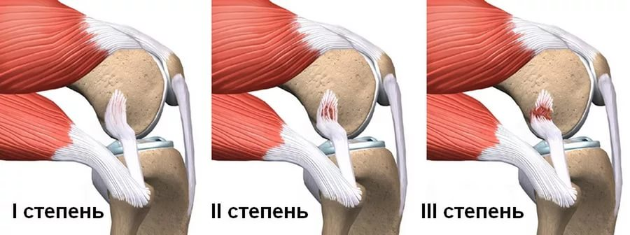 степени растяжения колена