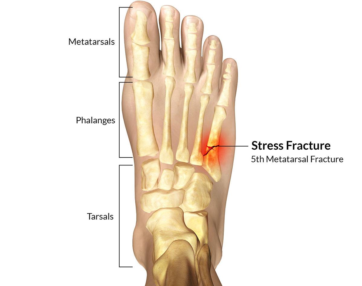 стрессовый перелом 5 плюсневой кости