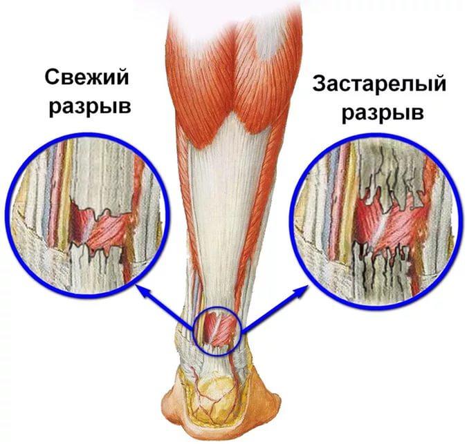 Разрыв ахиллова сухожилия: лечение и реабилитация после операции