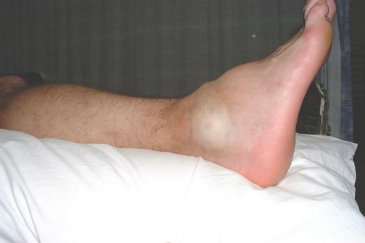 травма голеностопа