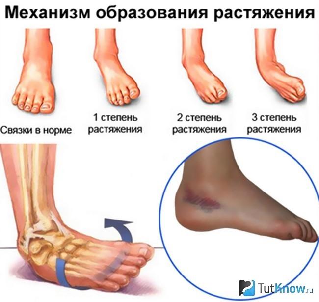 Травма левого голеностопного сустава диета при гонартрозе коленного сустава 3 степени дневники