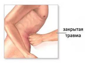 травма живота закрытая