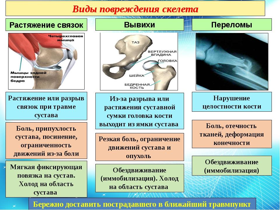 ушиб или перелом