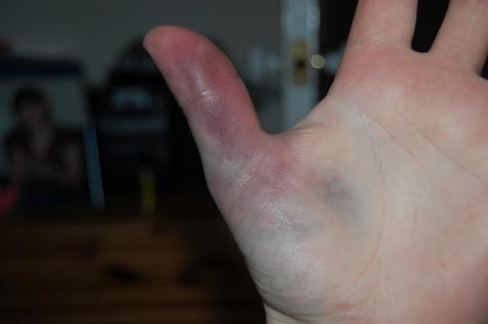 сильный ушиб пальца на руке