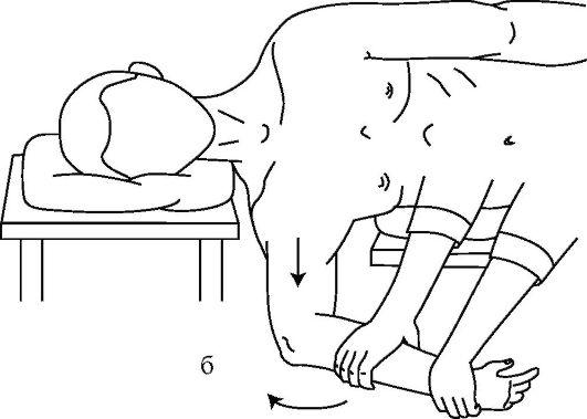 вправление вывиха плеча по джанелидзе