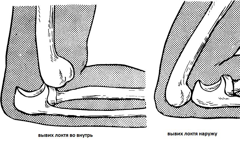 Вывих локтевого сустава: первая помощь, лечение, восстановление