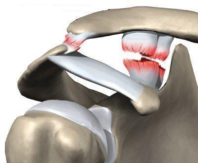 вывих плечевого сустава у собаки лечение ХэппиДогс