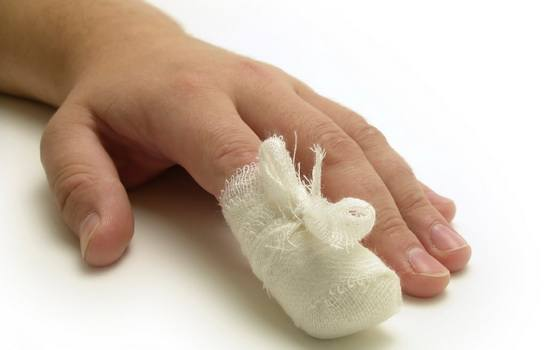 бинтование пальца с ушибом