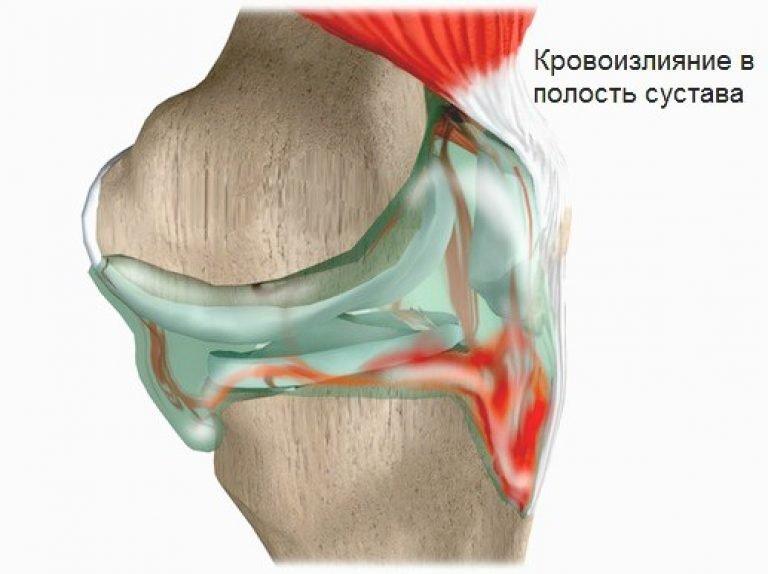 кровоизлияние в полость колена