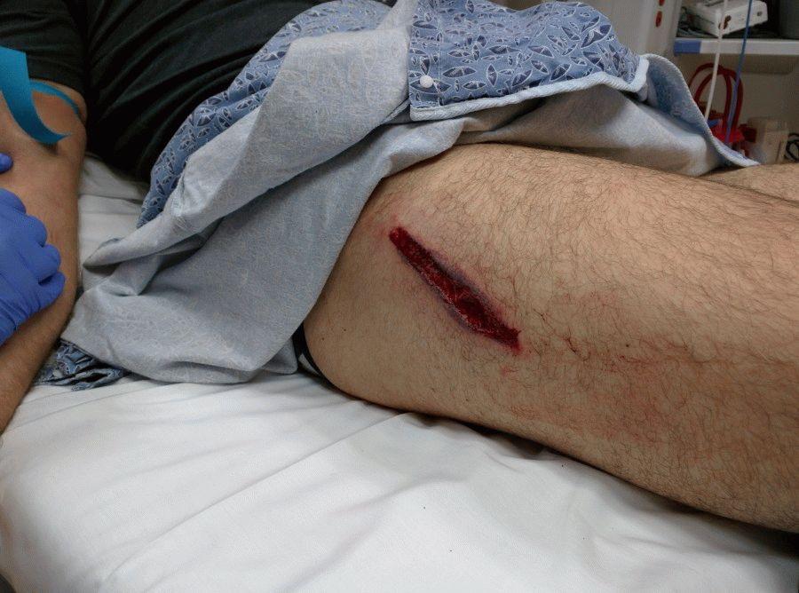 открытая рана а ноге