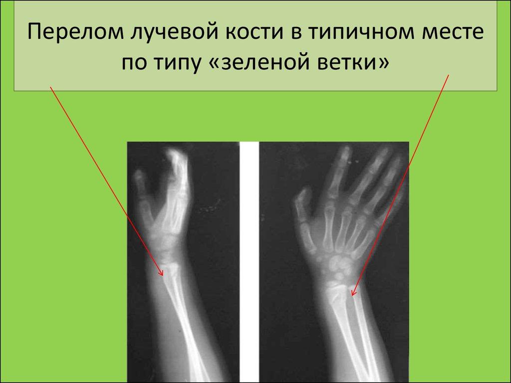перелом по типу зеленой веточки