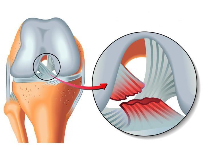 разры связок на ноге