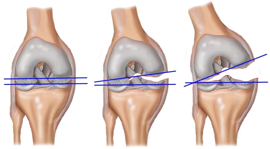 разрывы связок колена