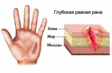 рваное ранение