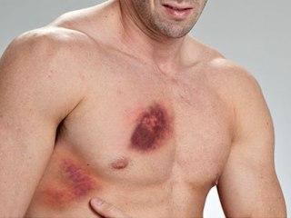 симптом ушиба грудной клетки