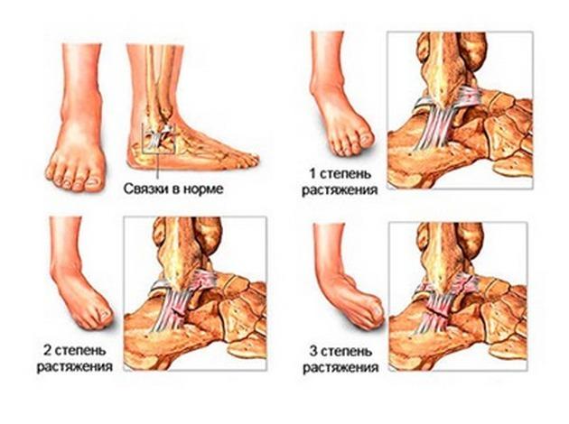 степени растяжения голеностопа
