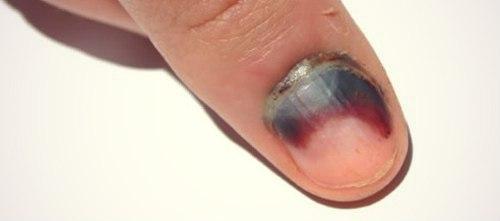Травмы ногтя на ноге 111