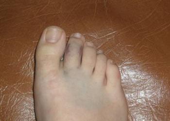 ушиб пальца ноги