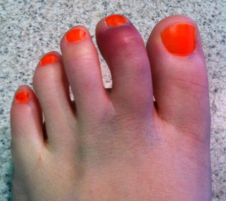 Ушиб пальца на ноге: что делать в домашних условиях