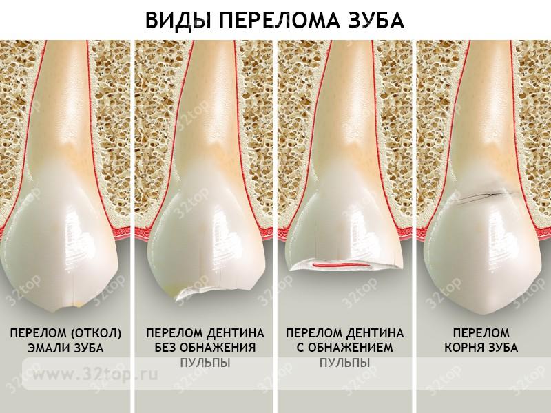 Перелом зуба (корня): признаки, восстановление