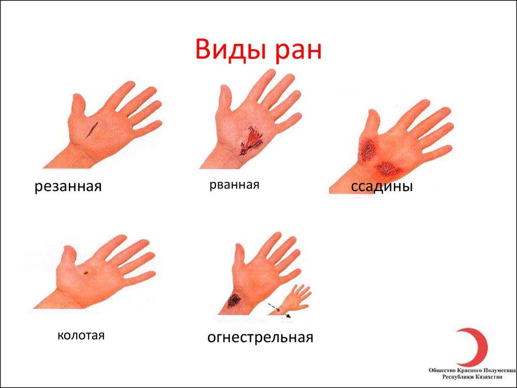 виды ранений