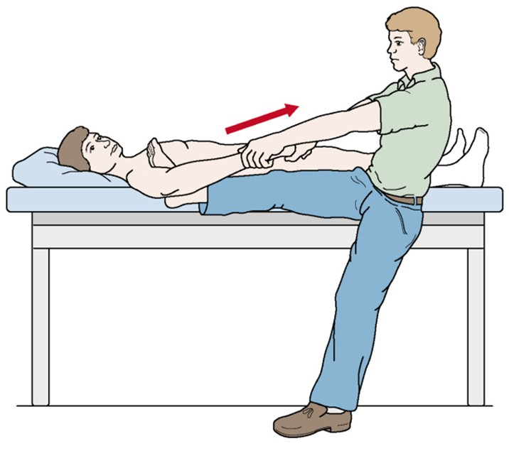 вправление плеча по гиппократу