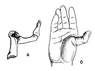 вывих большого пальца на руке