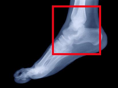 вывих голеностопа на рентгене