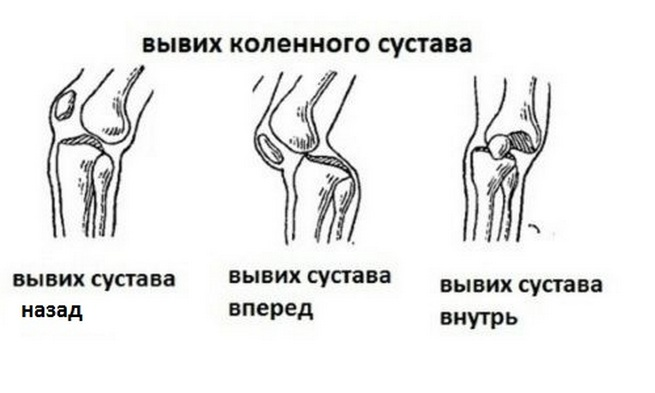 вывих коленного сустава