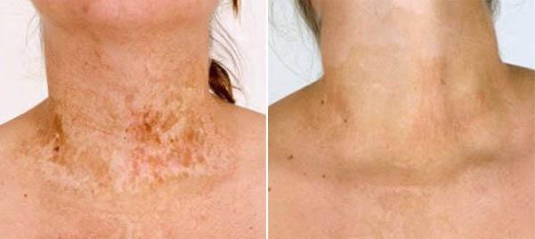 фото до и после пересадки кожи при ожоге