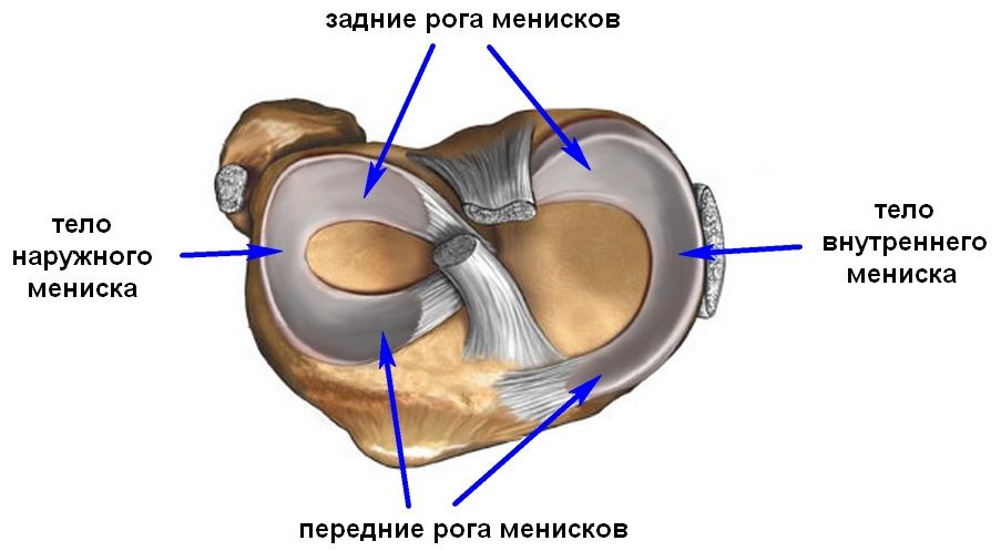 разрыв заднего рога мениска
