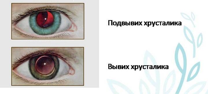 подвывих хрусталика глаза лечение