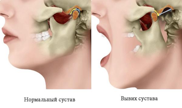 Лечение сустава челюсти лечебные упражнения при заболеванииатрит плечевого сустава