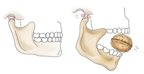 Изображение - Подвывих челюстного сустава podvyvih-chelyustnogo-sustava