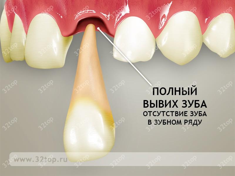 Первая помощь при вывихе зуба и лечение