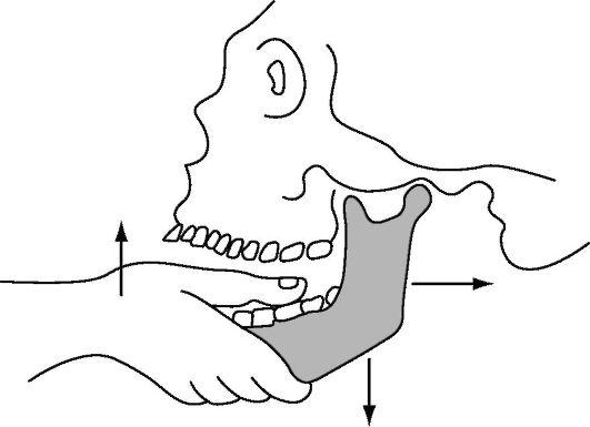 Подвывих челюстного сустава лечение