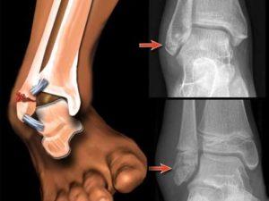 Как лечить перелом лодыжки, сколько ходить в гипсе?
