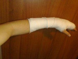 Лечение и срок срастания перелома лучевой кости руки со смещением